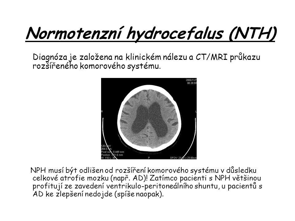Diagnóza je založena na klinickém nálezu a CT/MRI průkazu rozšířeného komorového systému.