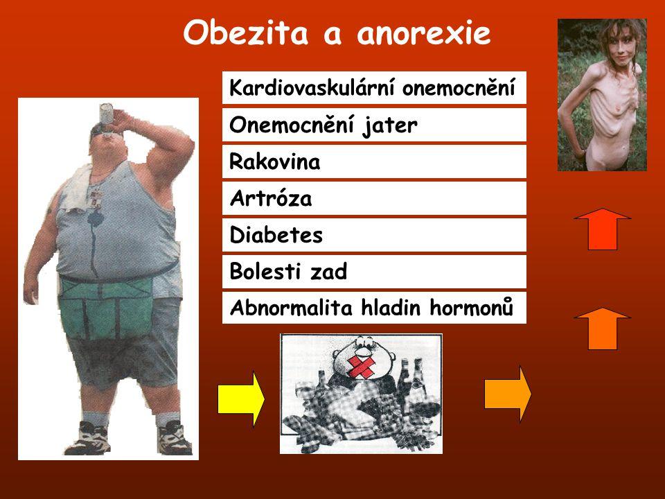 Obezita a anorexie Kardiovaskulární onemocnění Onemocnění jater Rakovina Artróza Diabetes Bolesti zad Abnormalita hladin hormonů