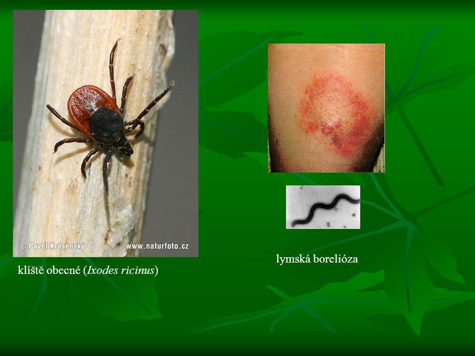klíště obecné (Ixodes ricinus) lymská borelióza