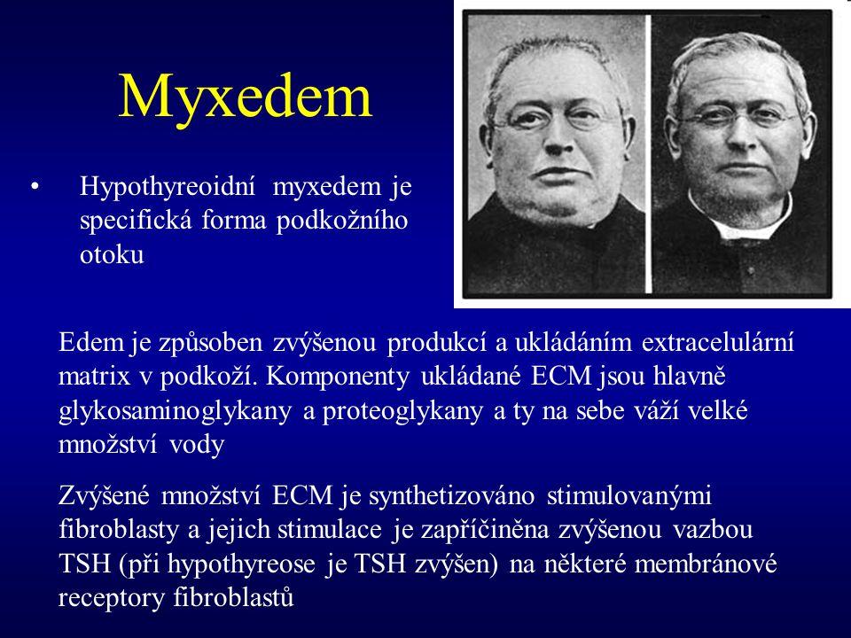 Myxedem Hypothyreoidní myxedem je specifická forma podkožního otoku Edem je způsoben zvýšenou produkcí a ukládáním extracelulární matrix v podkoží. Ko