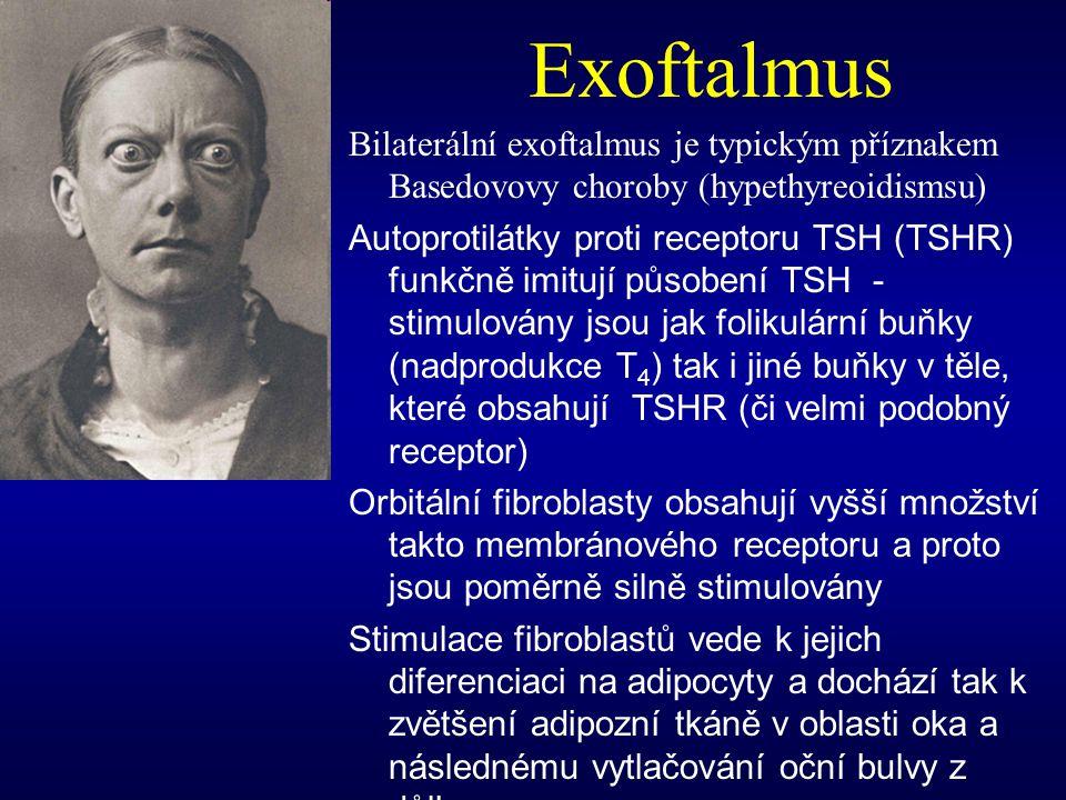 Exoftalmus Bilaterální exoftalmus je typickým příznakem Basedovovy choroby (hypethyreoidismsu) Autoprotilátky proti receptoru TSH (TSHR) funkčně imitu