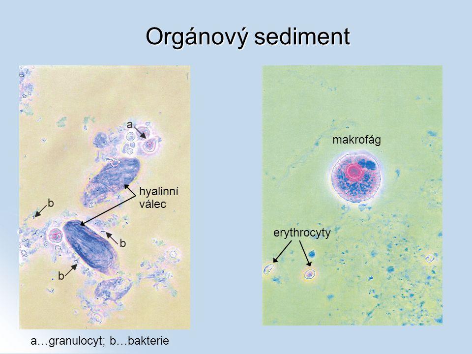 Orgánový sediment a…granulocyt; b…bakterie hyalinní válec makrofág erythrocyty