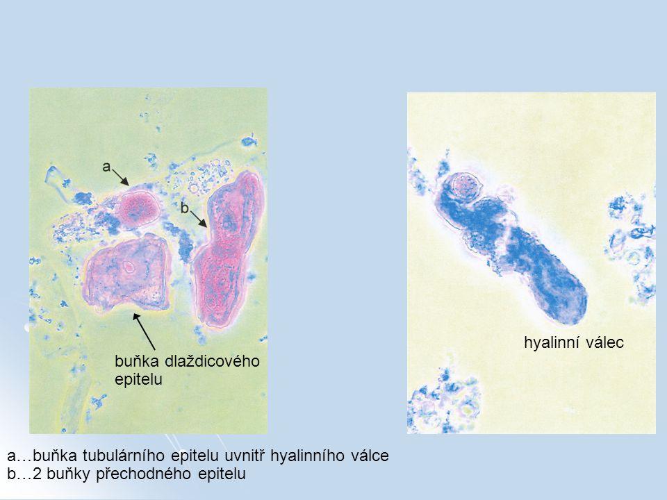 a…buňka tubulárního epitelu uvnitř hyalinního válce b…2 buňky přechodného epitelu buňka dlaždicového epitelu hyalinní válec