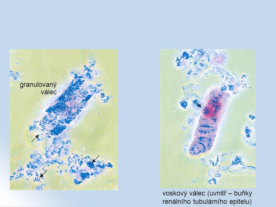 granulovaný válec voskový válec (uvnitř – buňky renálního tubulárního epitelu)