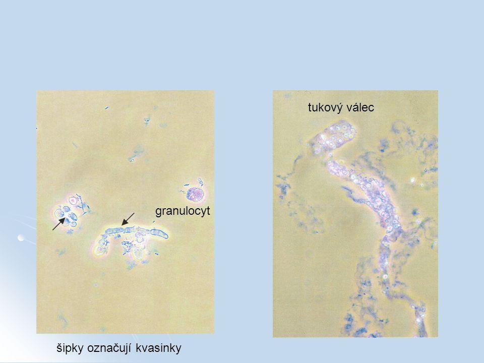 šipky označují kvasinky granulocyt tukový válec