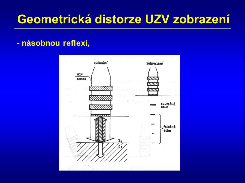 Geometrická distorze UZV zobrazení - násobnou reflexí,