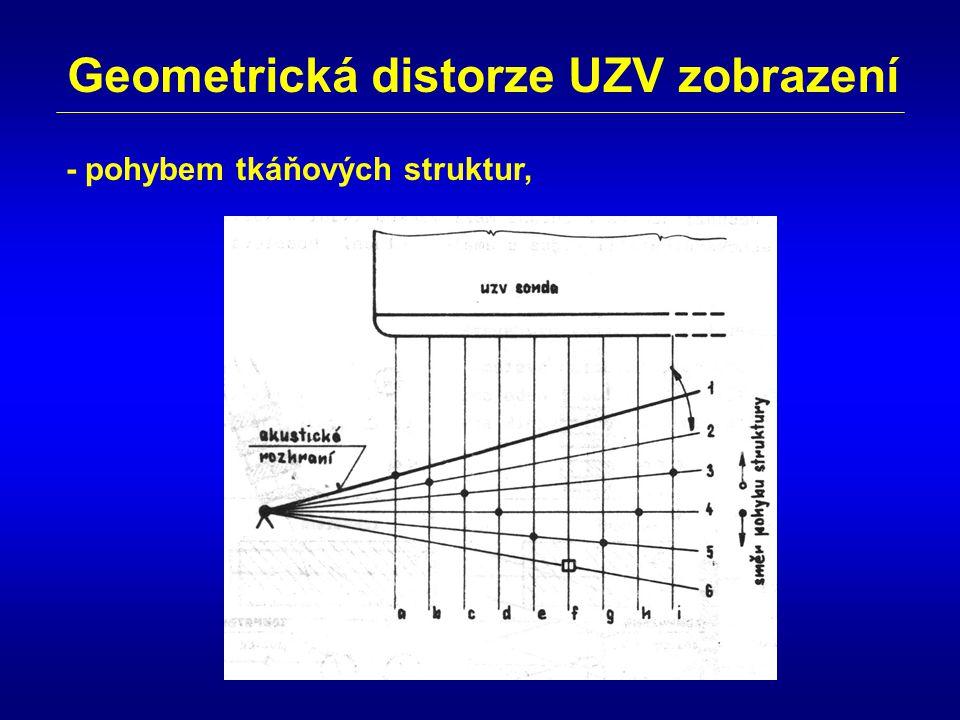 Geometrická distorze UZV zobrazení - pohybem tkáňových struktur,