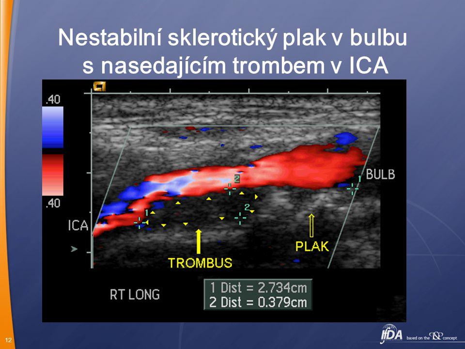 12 Nestabilní sklerotický plak v bulbu s nasedajícím trombem v ICA