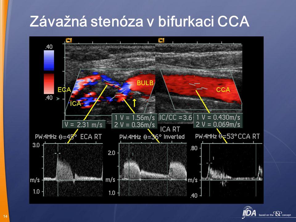 14 Závažná stenóza v bifurkaci CCA