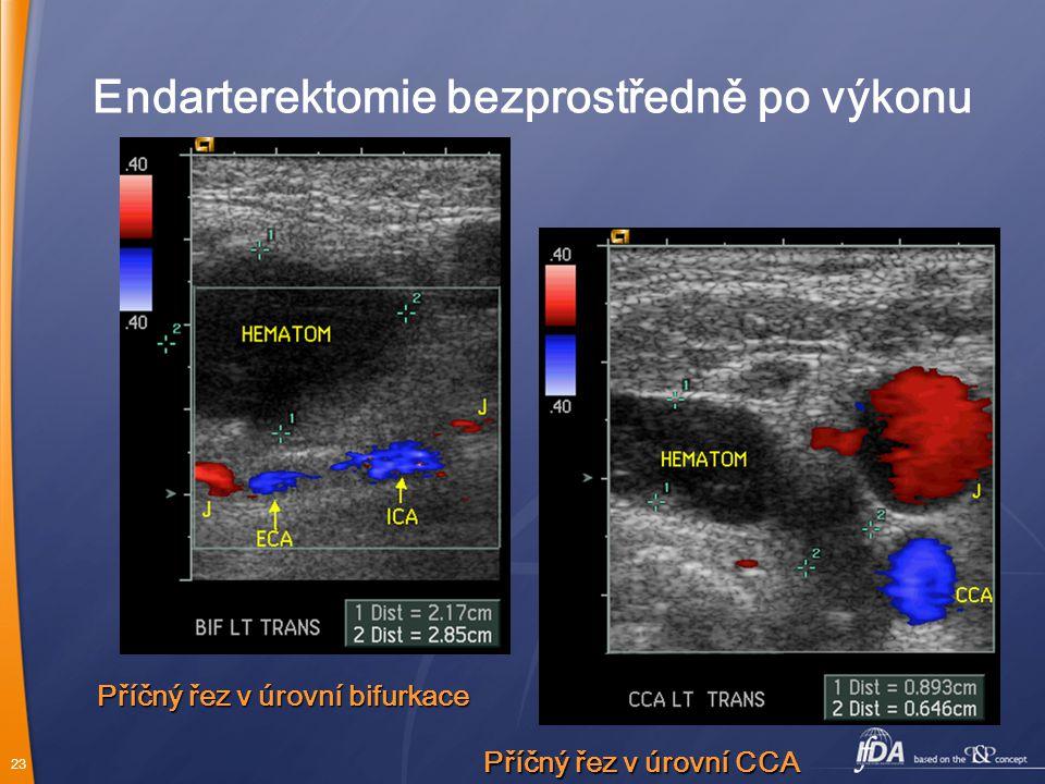 23 Endarterektomie bezprostředně po výkonu Příčný řez v úrovní CCA Příčný řez v úrovní bifurkace