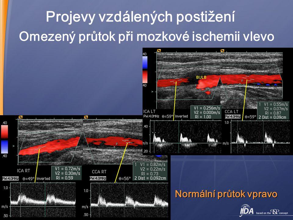 27 Omezený průtok při mozkové ischemii vlevo Projevy vzdálených postižení Normální průtok vpravo