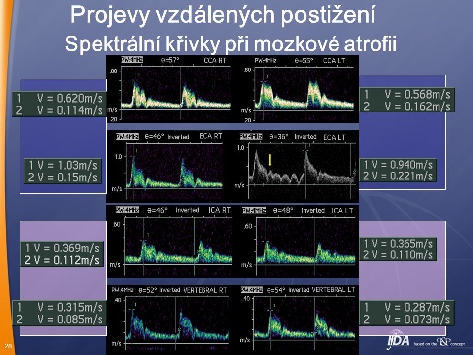 28 Spektrální křivky při mozkové atrofii Projevy vzdálených postižení