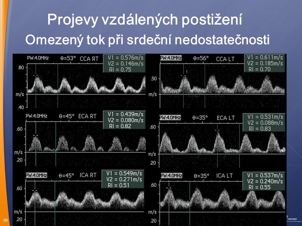 29 Omezený tok při srdeční nedostatečnosti Projevy vzdálených postižení