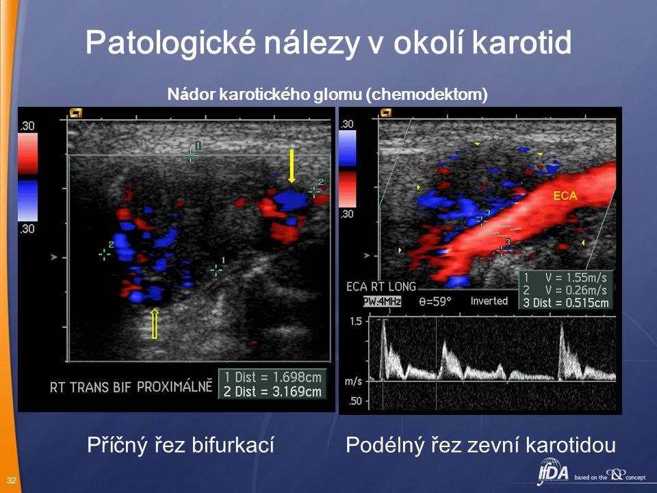 32 N á dor karotick é ho glomu (chemodektom) Patologické nálezy v okolí karotid Příčný řez bifurkacíPodélný řez zevní karotidou
