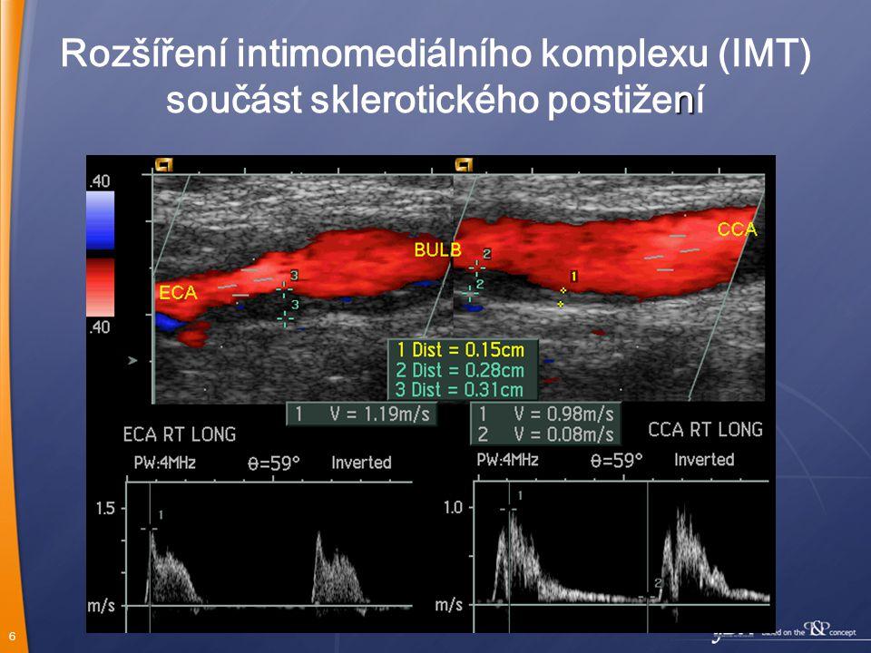 6 Rozšíření intimomediálního komplexu (IMT) n součást sklerotického postižení