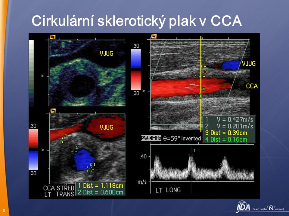 8 Cirkulární sklerotický plak v CCA