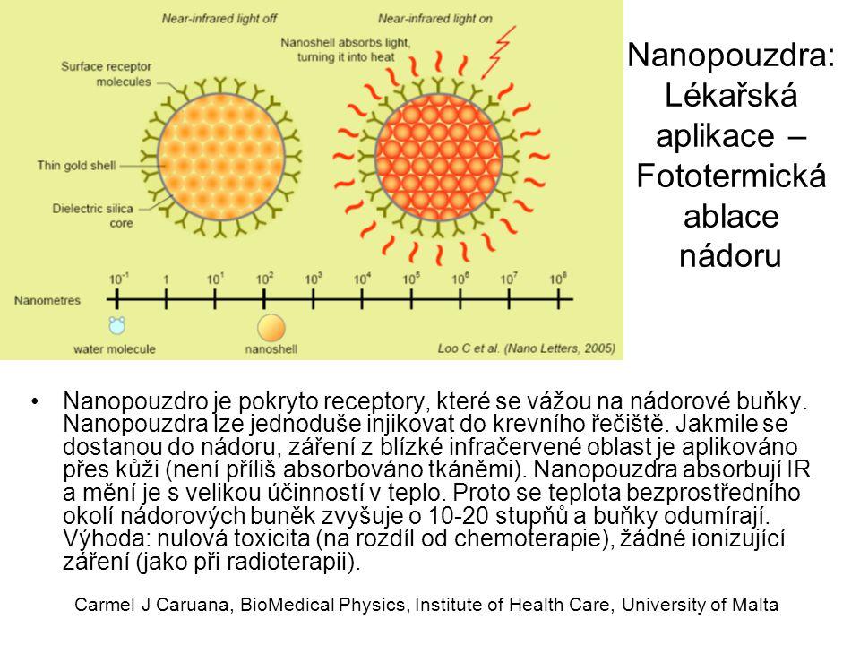Carmel J Caruana, BioMedical Physics, Institute of Health Care, University of Malta Nanopouzdra: Lékařská aplikace – Fototermická ablace nádoru Nanopo