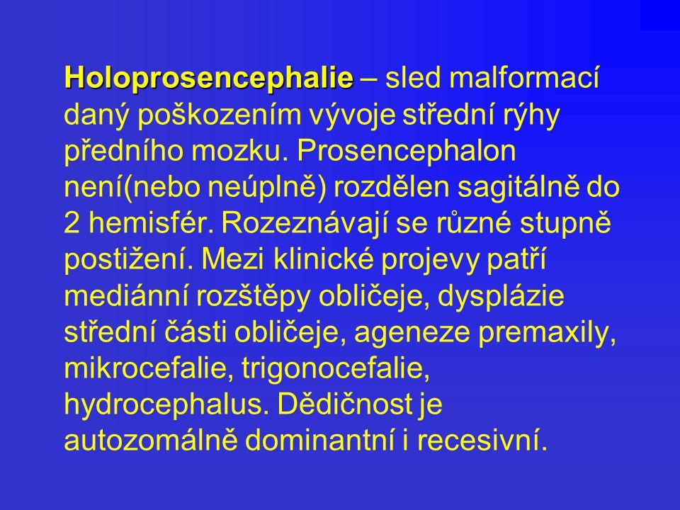 Holoprosencephalie Holoprosencephalie – sled malformací daný poškozením vývoje střední rýhy předního mozku. Prosencephalon není(nebo neúplně) rozdělen