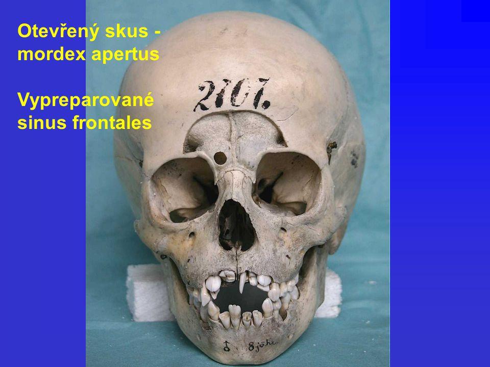 Otevřený skus - mordex apertus Vypreparované sinus frontales