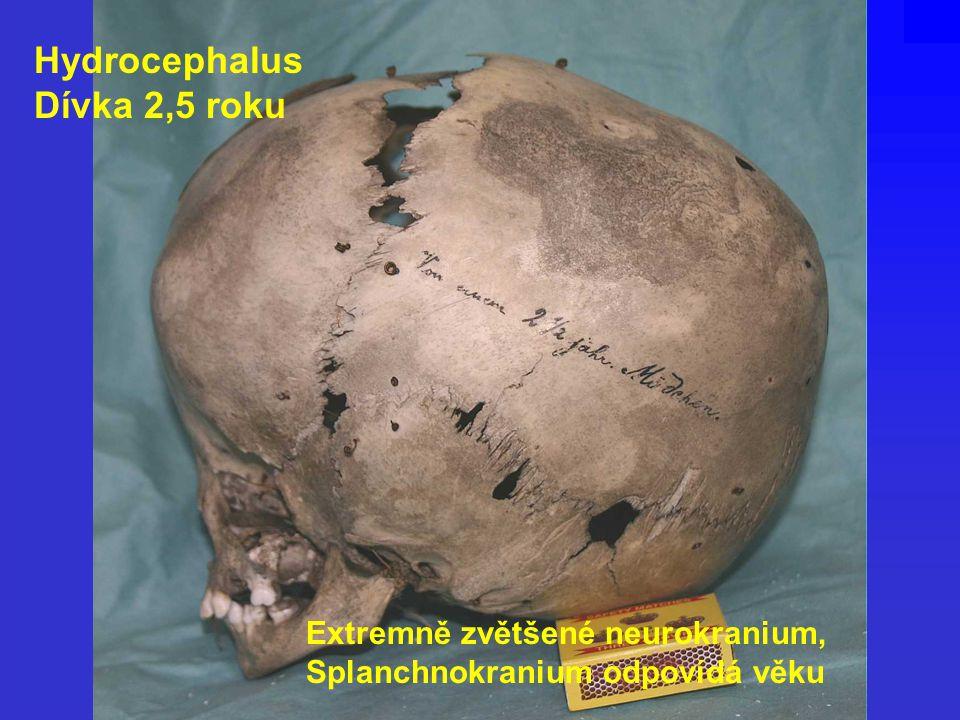 Hydrocephalus Dívka 2,5 roku Extremně zvětšené neurokranium, Splanchnokranium odpovídá věku