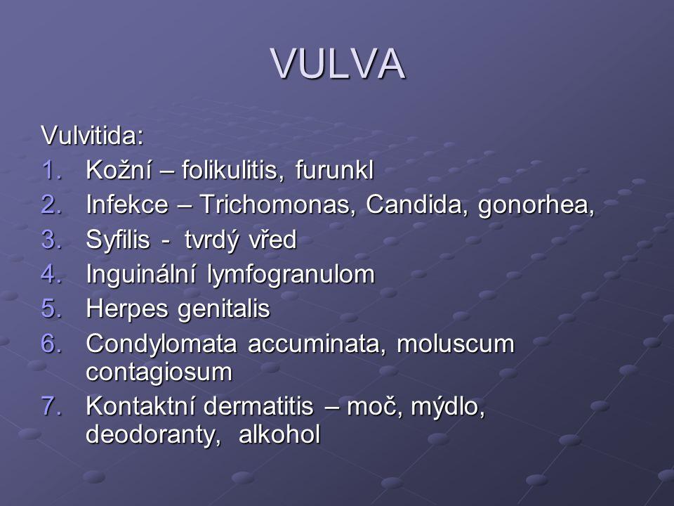 VULVA Vulvitida: 1.Kožní – folikulitis, furunkl 2.Infekce – Trichomonas, Candida, gonorhea, 3.Syfilis - tvrdý vřed 4.Inguinální lymfogranulom 5.Herpes genitalis 6.Condylomata accuminata, moluscum contagiosum 7.Kontaktní dermatitis – moč, mýdlo, deodoranty, alkohol