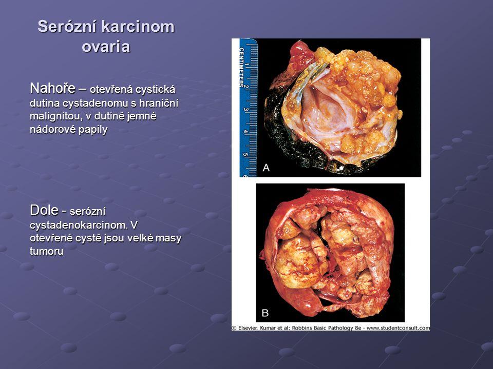 Serózní karcinom ovaria Nahoře – otevřená cystická dutina cystadenomu s hraniční malignitou, v dutině jemné nádorové papily Dole - serózní cystadenokarcinom.