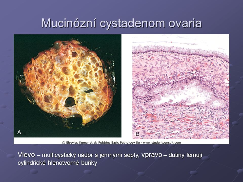 Mucinózní cystadenom ovaria Vlevo – multicystický nádor s jemnými septy, vpravo – dutiny lemují cylindrické hlenotvorné buňky