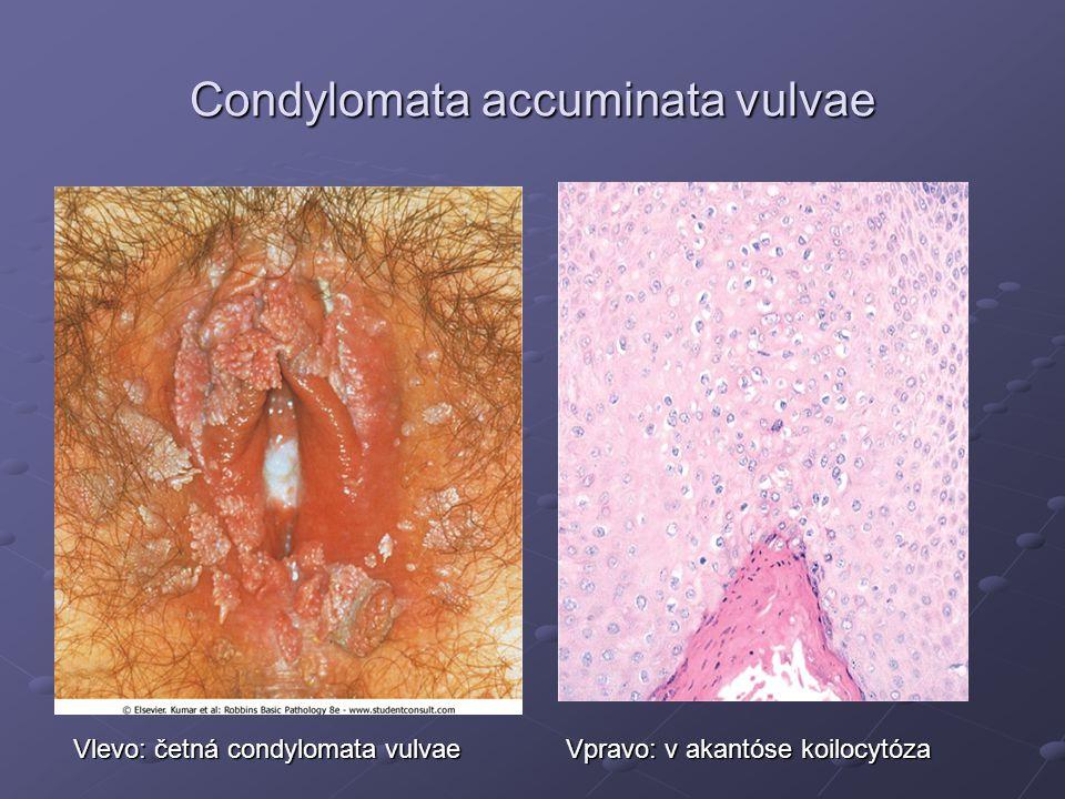 Condylomata accuminata vulvae Vlevo: četná condylomata vulvae Vpravo: v akantóse koilocytóza