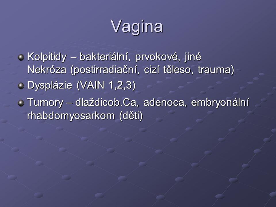 Příčiny metrorhagie 1.Anovulační cyklus – prodloužení estrogenní fáze, estrogenní stimulace není následována progesteronovou fází.