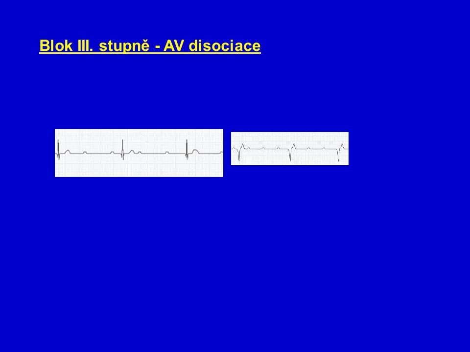 Blok III. stupně - AV disociace