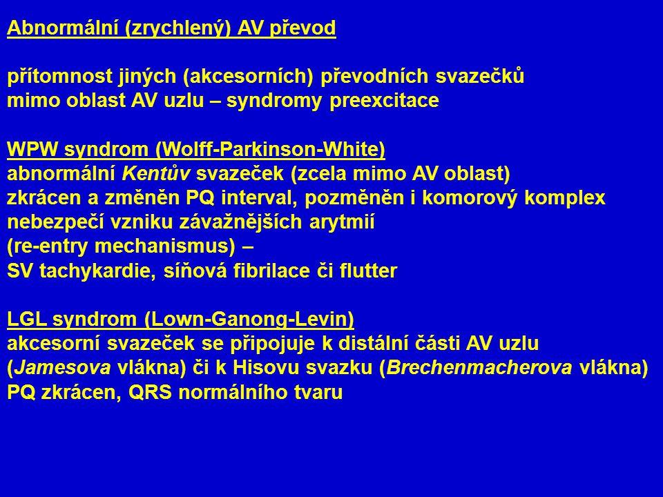Abnormální (zrychlený) AV převod přítomnost jiných (akcesorních) převodních svazečků mimo oblast AV uzlu – syndromy preexcitace WPW syndrom (Wolff-Parkinson-White) abnormální Kentův svazeček (zcela mimo AV oblast) zkrácen a změněn PQ interval, pozměněn i komorový komplex nebezpečí vzniku závažnějších arytmií (re-entry mechanismus) – SV tachykardie, síňová fibrilace či flutter LGL syndrom (Lown-Ganong-Levin) akcesorní svazeček se připojuje k distální části AV uzlu (Jamesova vlákna) či k Hisovu svazku (Brechenmacherova vlákna) PQ zkrácen, QRS normálního tvaru