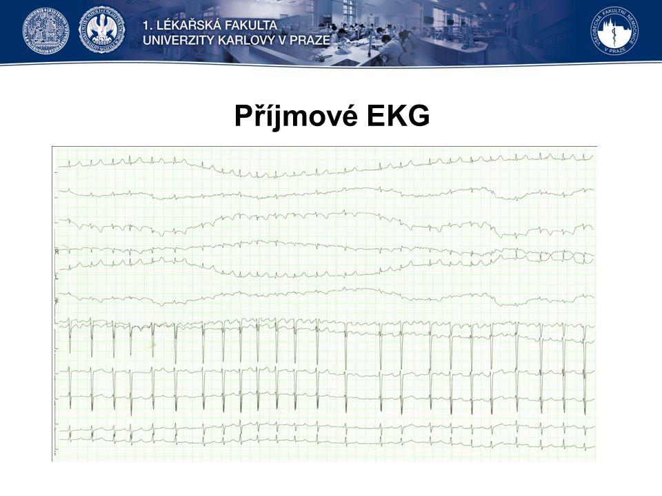 Příjmové EKG