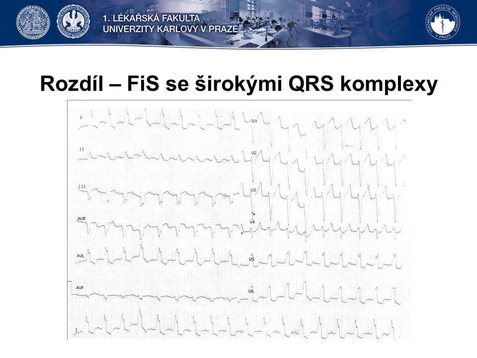 Fibrilace síní – definice Fibrilace síní (FiS, FS) je nepravidelná dezorganizovaná aktivita síní, kdy se na křivce EKG namísto vln P objevují rychlé oscilace označované jako vlny f .