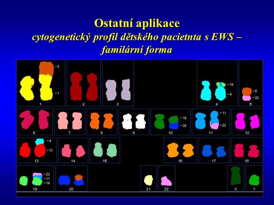 Ostatní aplikace cytogenetický profil dětského pacietnta s EWS – familární forma