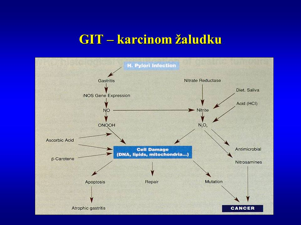 GIT – karcinom žaludku
