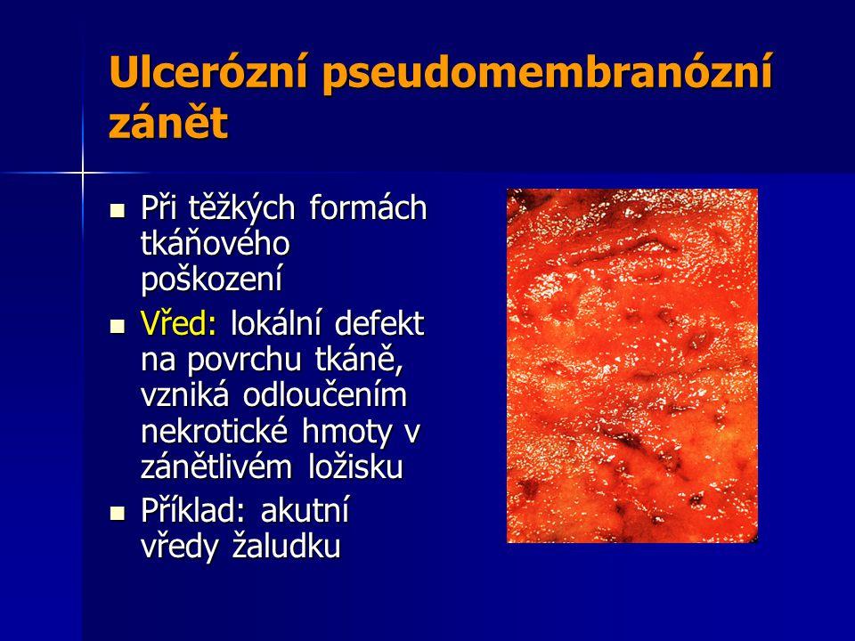 Ulcerózní pseudomembranózní zánět Při těžkých formách tkáňového poškození Při těžkých formách tkáňového poškození Vřed: lokální defekt na povrchu tkáně, vzniká odloučením nekrotické hmoty v zánětlivém ložisku Vřed: lokální defekt na povrchu tkáně, vzniká odloučením nekrotické hmoty v zánětlivém ložisku Příklad: akutní vředy žaludku Příklad: akutní vředy žaludku