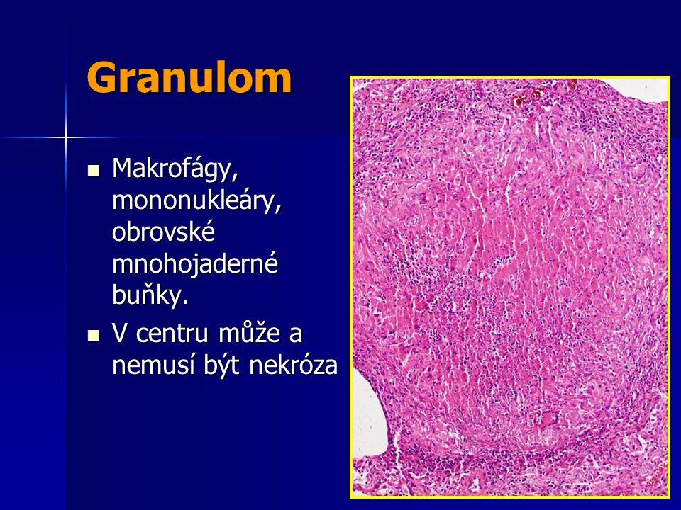 Granulom Makrofágy, mononukleáry, obrovské mnohojaderné buňky.