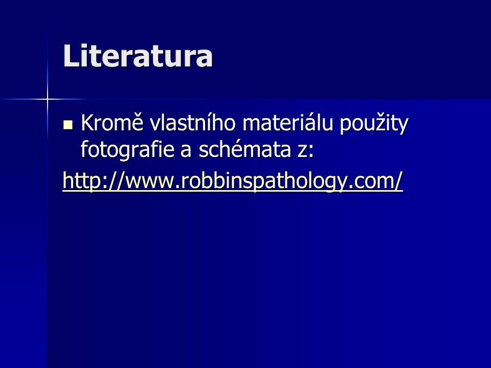 Literatura Kromě vlastního materiálu použity fotografie a schémata z: Kromě vlastního materiálu použity fotografie a schémata z: http://www.robbinspathology.com/