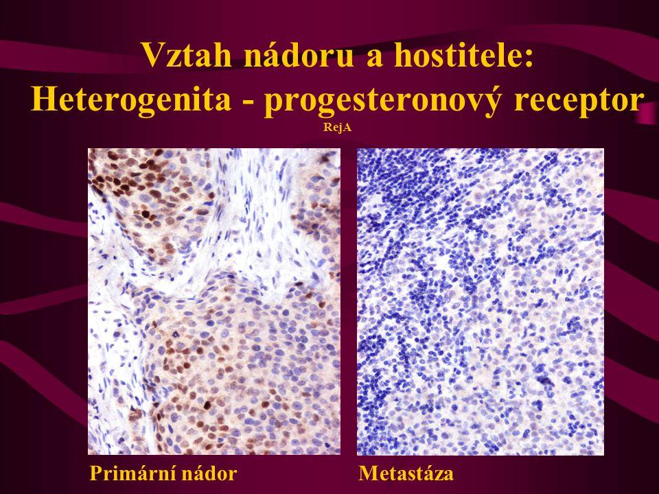 Primární nádor Metastáza Vztah nádoru a hostitele: Heterogenita - progesteronový receptor RejA