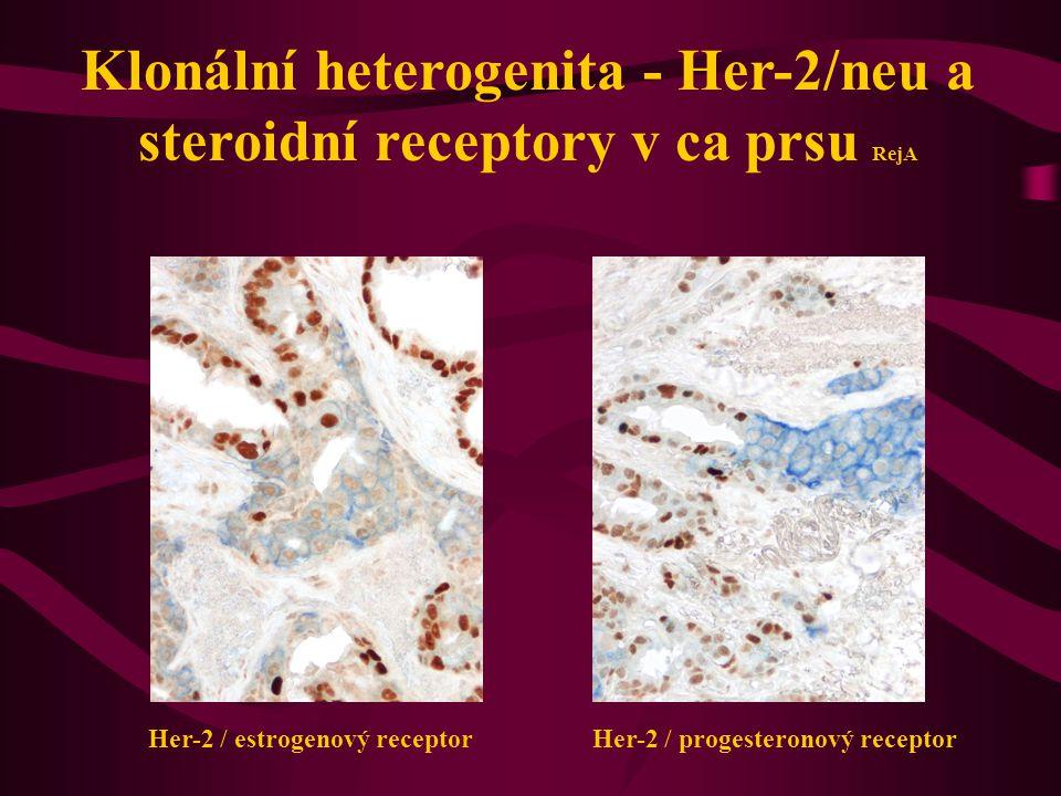 Klonální heterogenita - Her-2/neu a steroidní receptory v ca prsu RejA Her-2 / estrogenový receptor Her-2 / progesteronový receptor