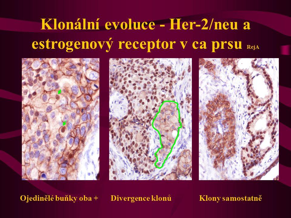 Klonální evoluce - Her-2/neu a estrogenový receptor v ca prsu RejA Ojedinělé buňky oba + Divergence klonů Klony samostatně
