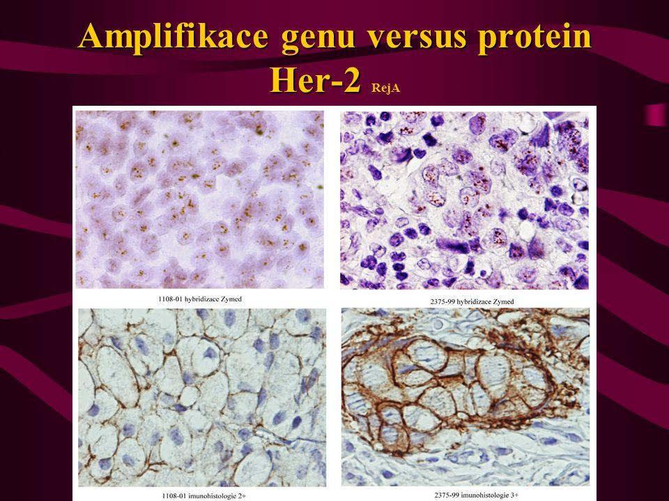 Amplifikace genu versus protein Her-2 Amplifikace genu versus protein Her-2 RejA