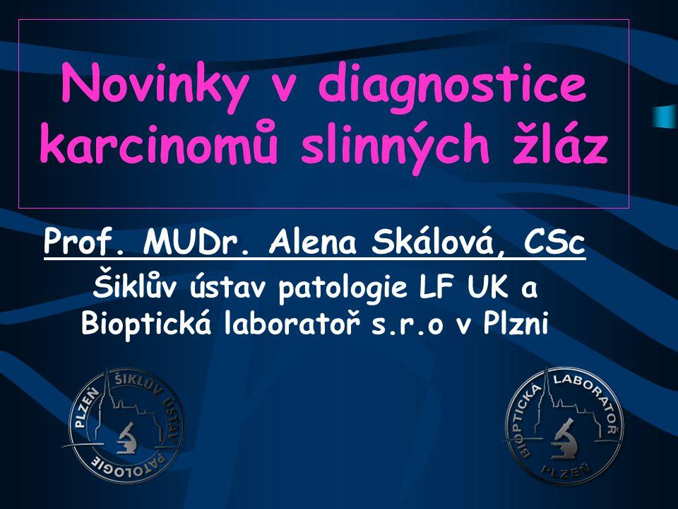 Onkocytický SDC