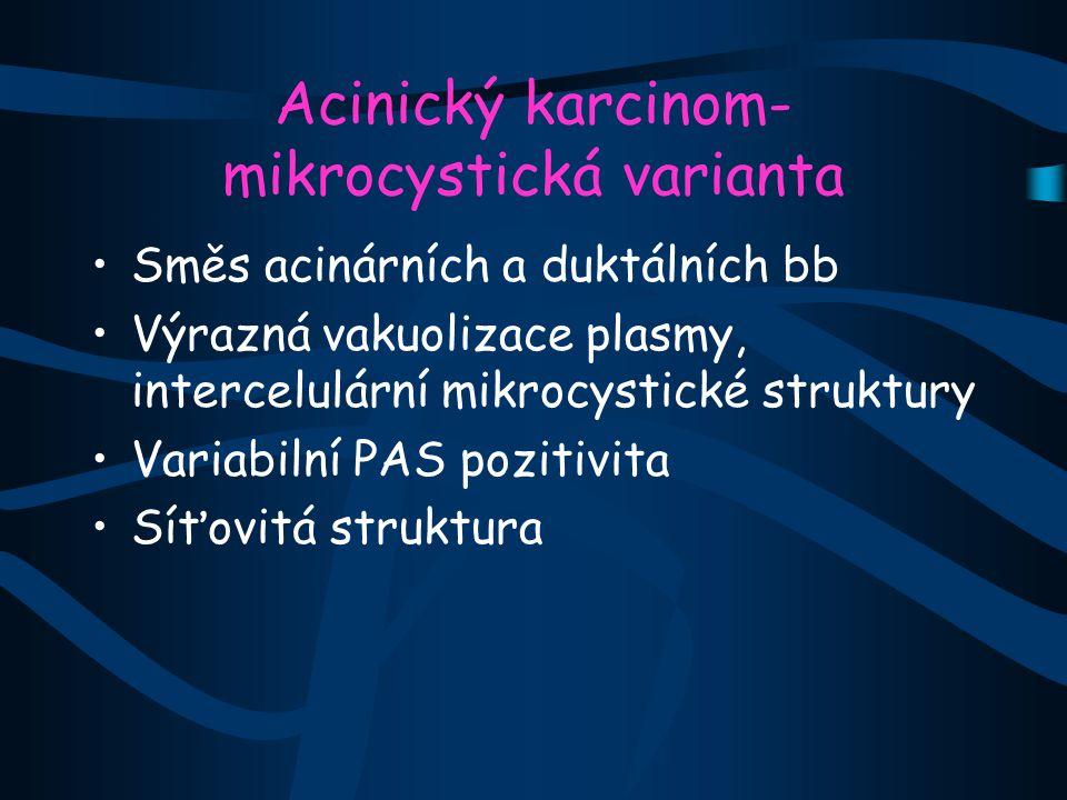 Acinický karcinom- mikrocystická varianta Směs acinárních a duktálních bb Výrazná vakuolizace plasmy, intercelulární mikrocystické struktury Variabiln