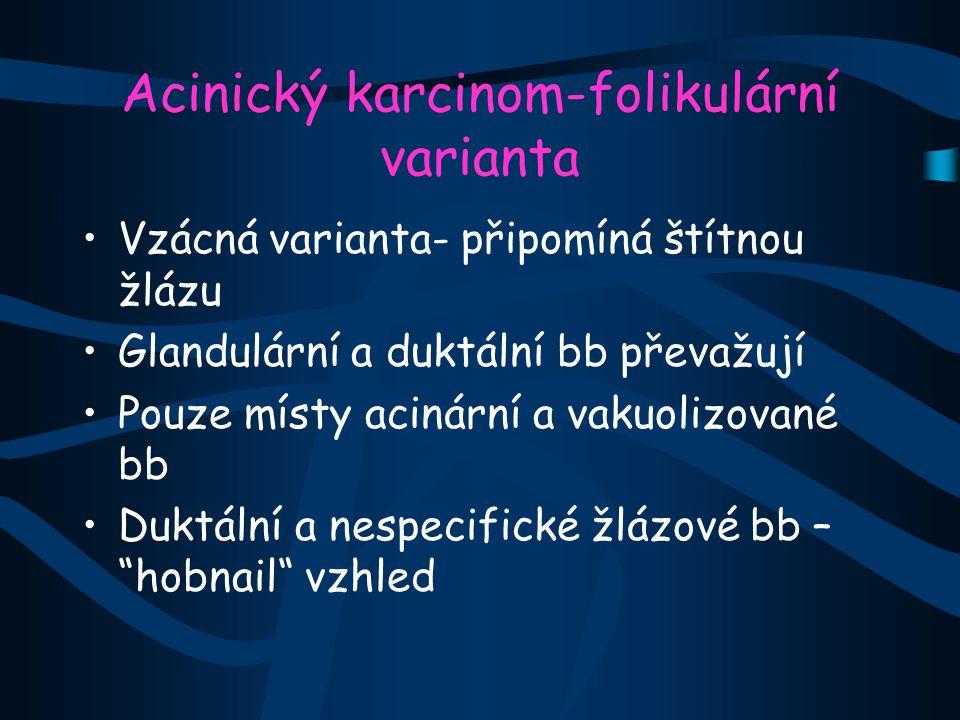Acinický karcinom-folikulární varianta Vzácná varianta- připomíná štítnou žlázu Glandulární a duktální bb převažují Pouze místy acinární a vakuolizova