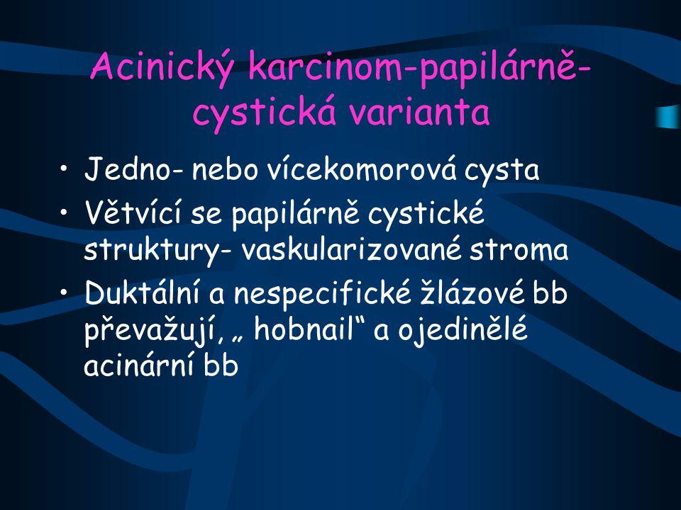 """Acinický karcinom-papilárně- cystická varianta Jedno- nebo vícekomorová cysta Větvící se papilárně cystické struktury- vaskularizované stroma Duktální a nespecifické žlázové bb převažují, """" hobnail a ojedinělé acinární bb"""
