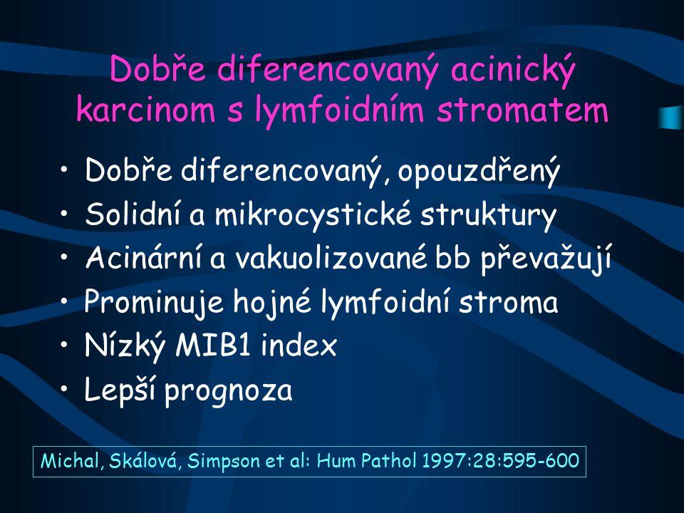 Dobře diferencovaný acinický karcinom s lymfoidním stromatem Dobře diferencovaný, opouzdřený Solidní a mikrocystické struktury Acinární a vakuolizované bb převažují Prominuje hojné lymfoidní stroma Nízký MIB1 index Lepší prognoza Michal, Skálová, Simpson et al: Hum Pathol 1997:28:595-600