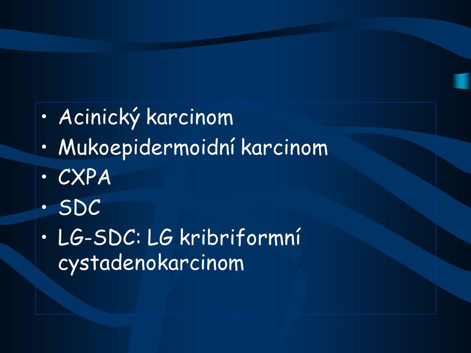 Acinický karcinom (ICD-O kód: 8550/3) Představuje 18-20% SG karcinomů Parotis (80%), ženy častěji věk 3-7 dekáda, druhý nejč.