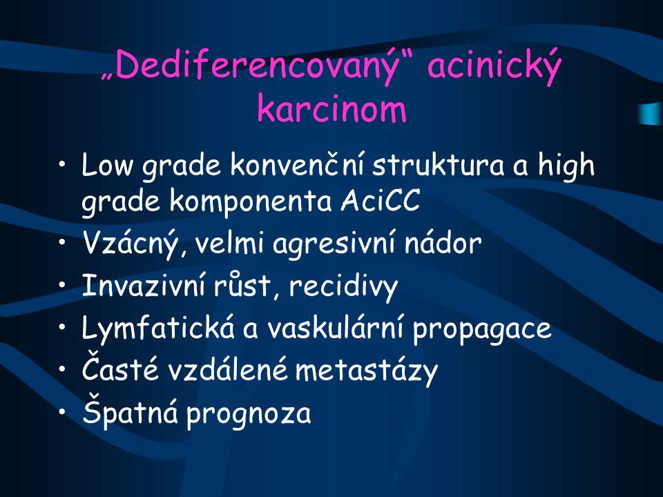 """"""" Dediferencovaný acinický karcinom Low grade konvenční struktura a high grade komponenta AciCC Vzácný, velmi agresivní nádor Invazivní růst, recidivy Lymfatická a vaskulární propagace Časté vzdálené metastázy Špatná prognoza"""
