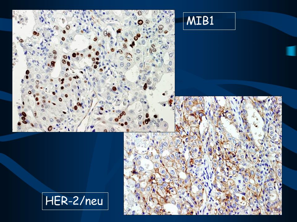 MIB1 HER-2/neu